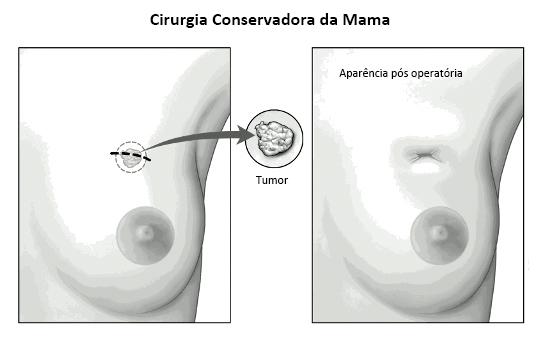 Tumorectomia - Cirurgia conservadora da mama